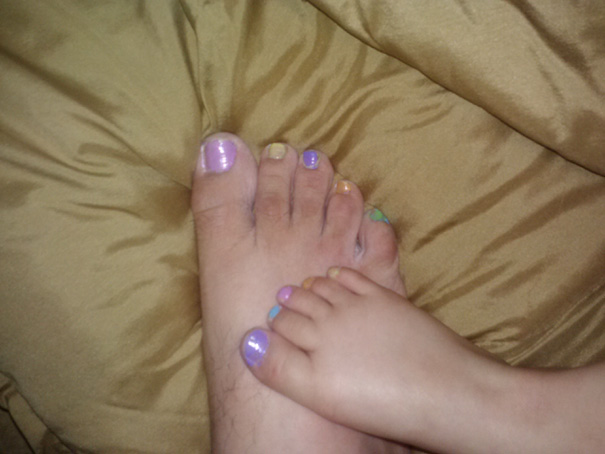 My 4 Y/O Daughter Decided To Paint My Nails To Match. Wouldn't Be So Odd But I'm A 28 Y/O Single Dad