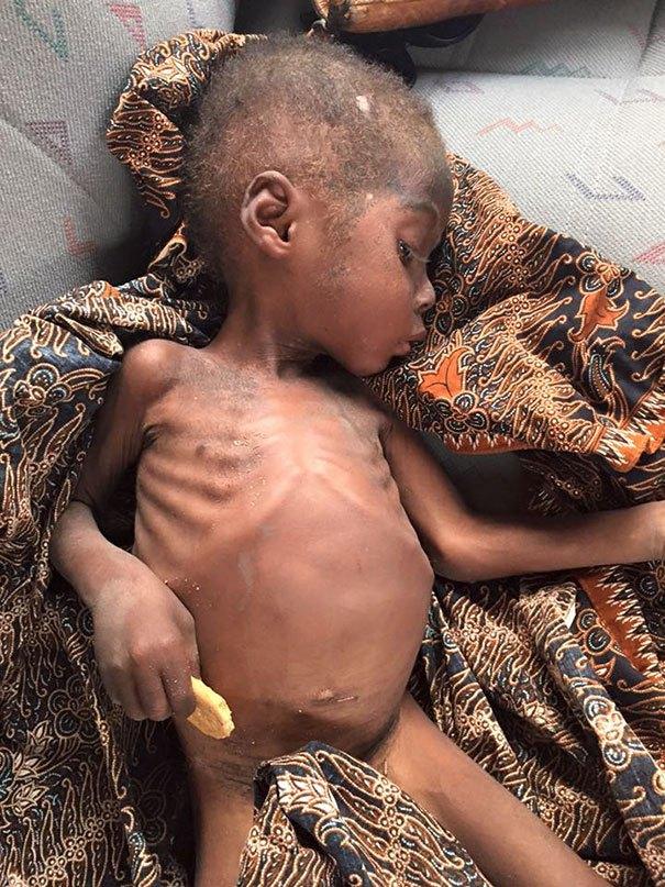 nigerian-starving-thirsty-boy-hope-rescued-anja-ringgren-loven-23