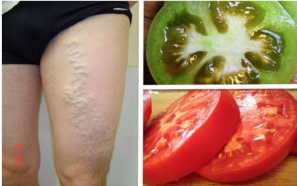 how-to-cure-varicose-veins-with-the-help-of-green-and-ripe-red-tomato1