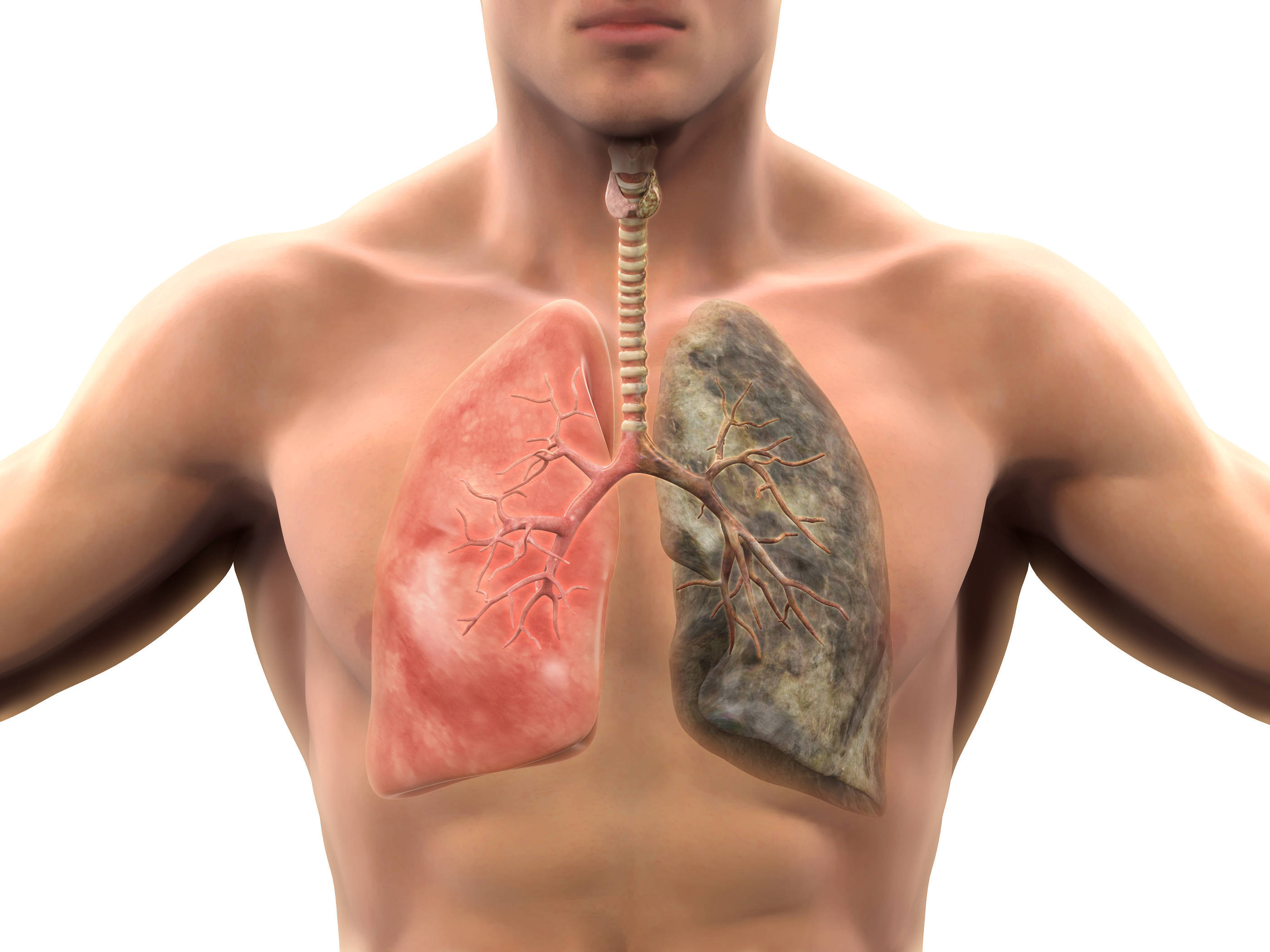 bigstock-Healthy-Lung-and-Smokers-Lung-65743462