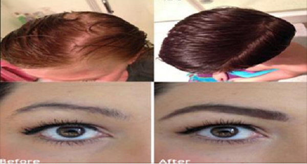 This Oil Is Amazing For Thickening And Regrowing Hair, Eyelashes And Eyebrows