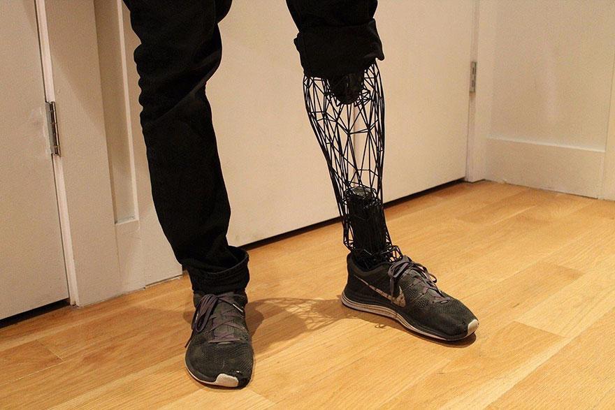 3d-protezy2
