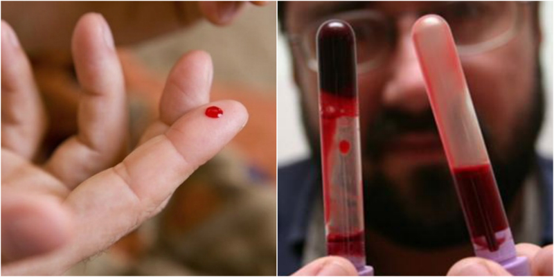 густая кровь