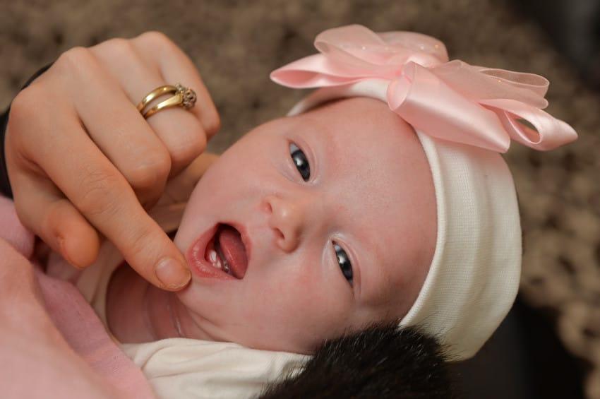 ella-rose teeth