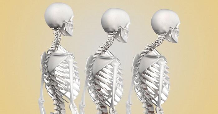 Prečo bolieť kĺby celého tela