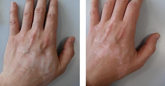 žaburinka v vitiligo