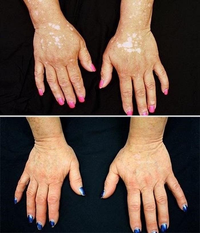 žaburinka proti vitiligo