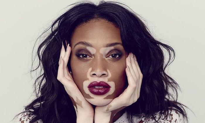 sutana liečiť vitiligo