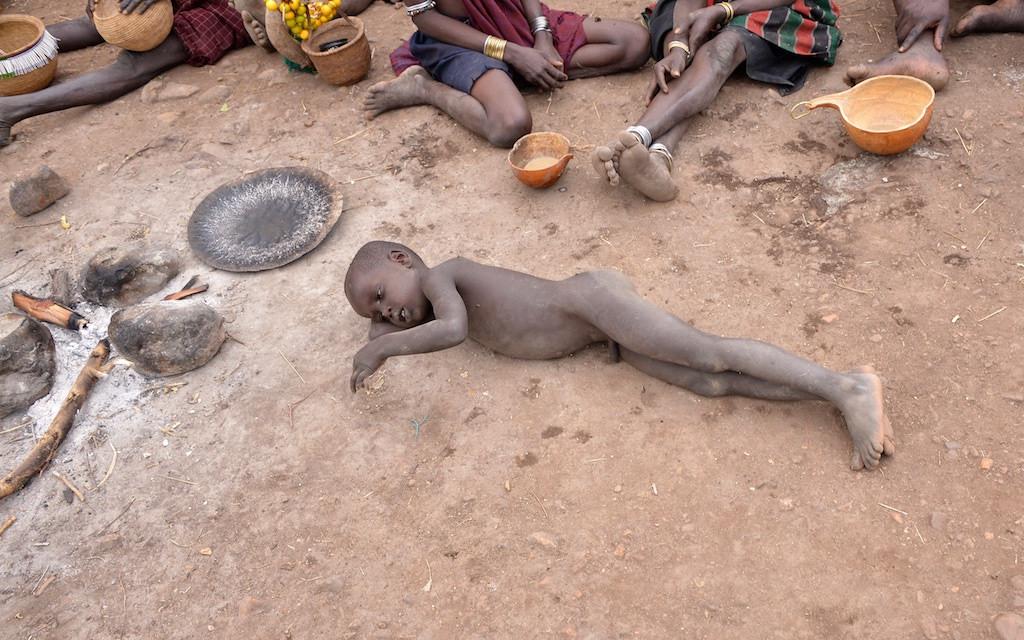 africa malaria fotografia
