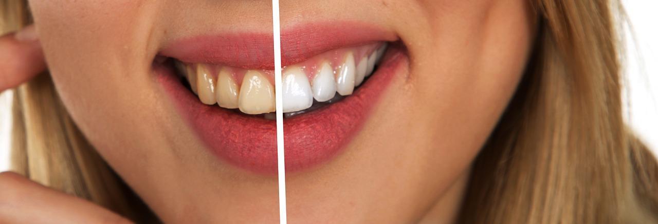 toothpaste fotografia